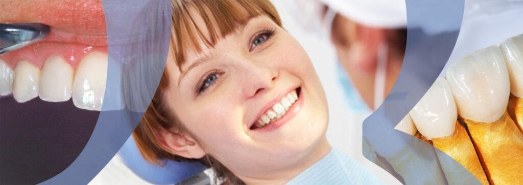 les facettes ceramiques Dr Raphael Boudas chirurgien dentiste